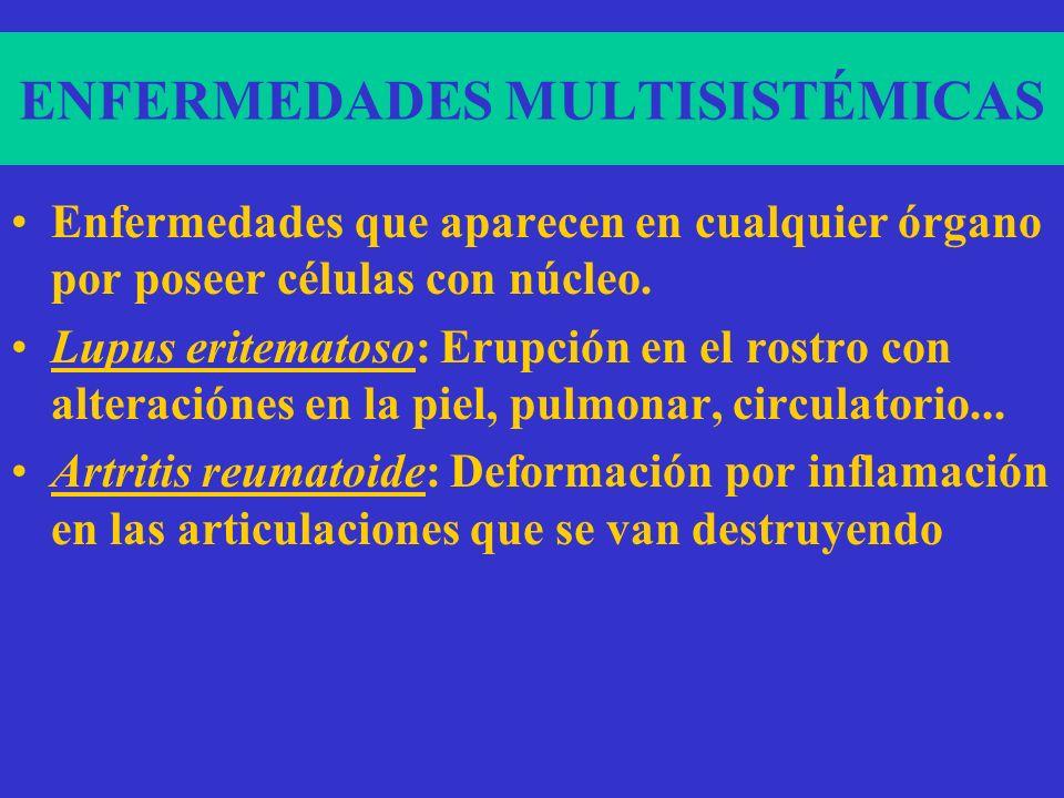 ENFERMEDADES MULTISISTÉMICAS Enfermedades que aparecen en cualquier órgano por poseer células con núcleo.