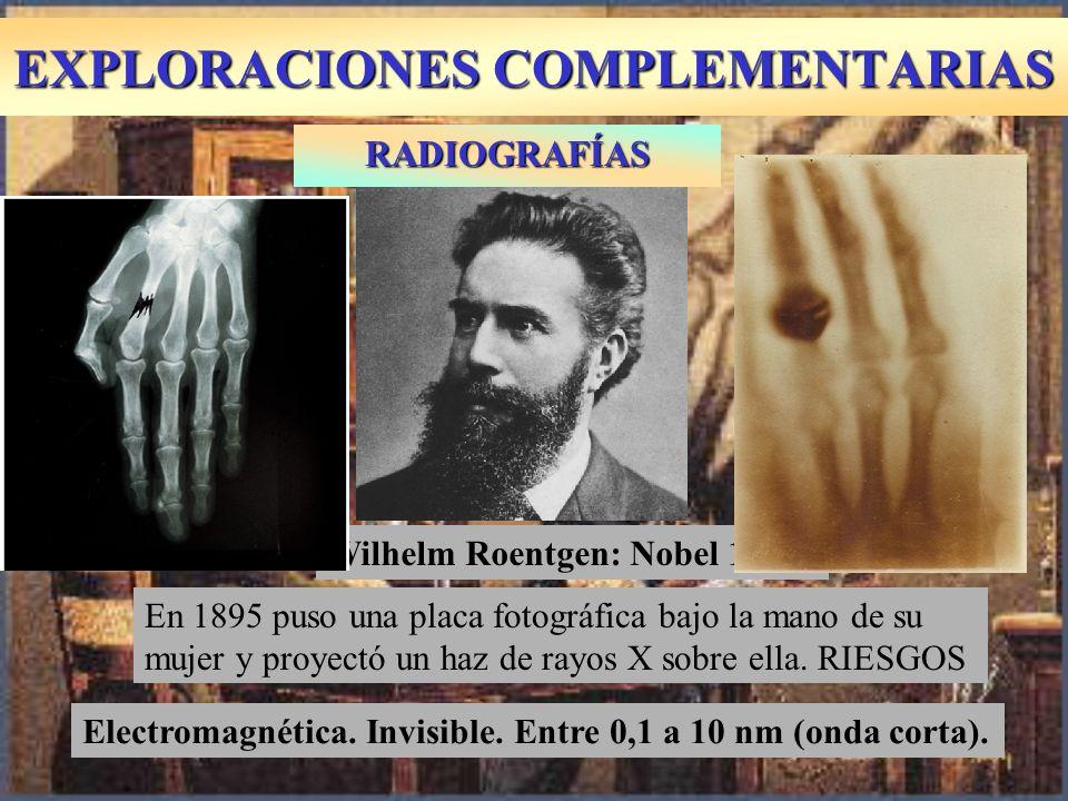 EXPLORACIONES COMPLEMENTARIAS RADIOGRAFÍAS En 1895 puso una placa fotográfica bajo la mano de su mujer y proyectó un haz de rayos X sobre ella. RIESGO