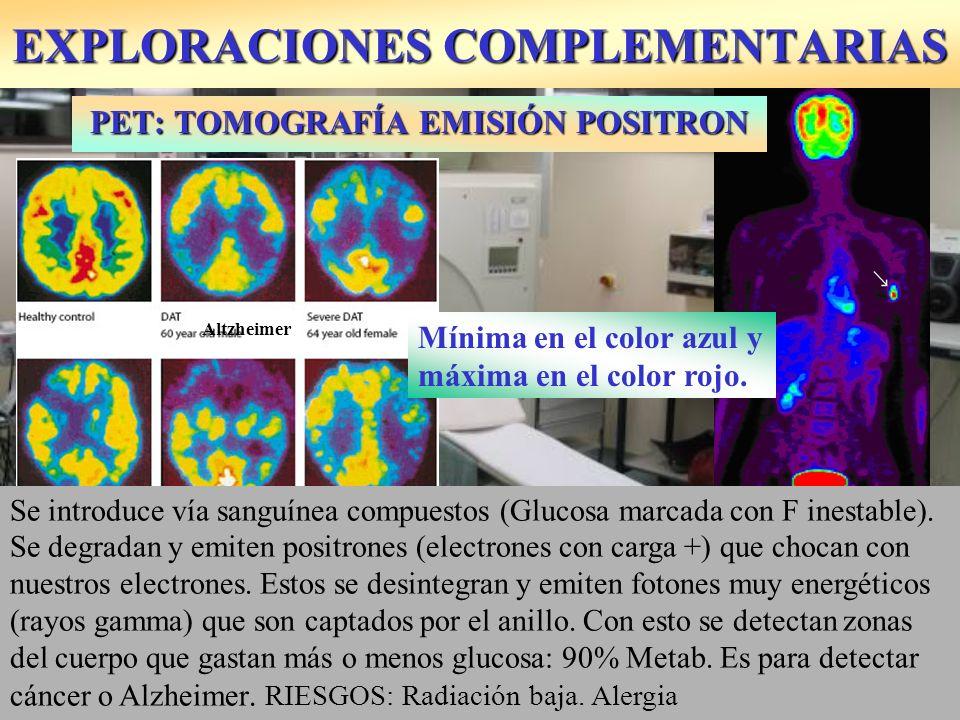 PET: TOMOGRAFÍA EMISIÓN POSITRON Altzheimer Multiinfarto Se introduce vía sanguínea compuestos (Glucosa marcada con F inestable). Se degradan y emiten