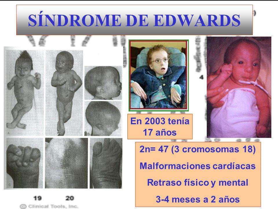 SÍNDROME DE EDWARDS 2n= 47 (3 cromosomas 18) Malformaciones cardíacas Retraso físico y mental 3-4 meses a 2 años En 2003 tenía 17 años