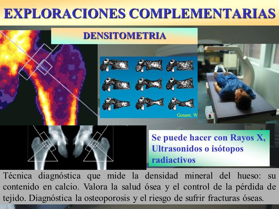 EXPLORACIONES COMPLEMENTARIAS Técnica diagnóstica que mide la densidad mineral del hueso: su contenido en calcio. Valora la salud ósea y el control de