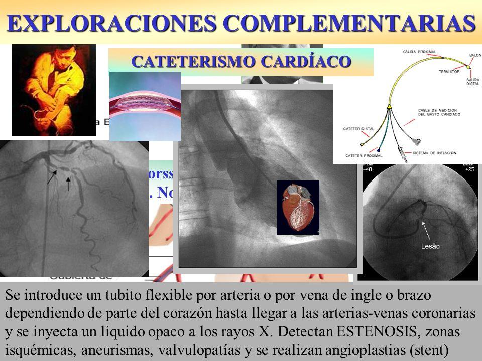 Se introduce un tubito flexible por arteria o por vena de ingle o brazo dependiendo de parte del corazón hasta llegar a las arterias-venas coronarias