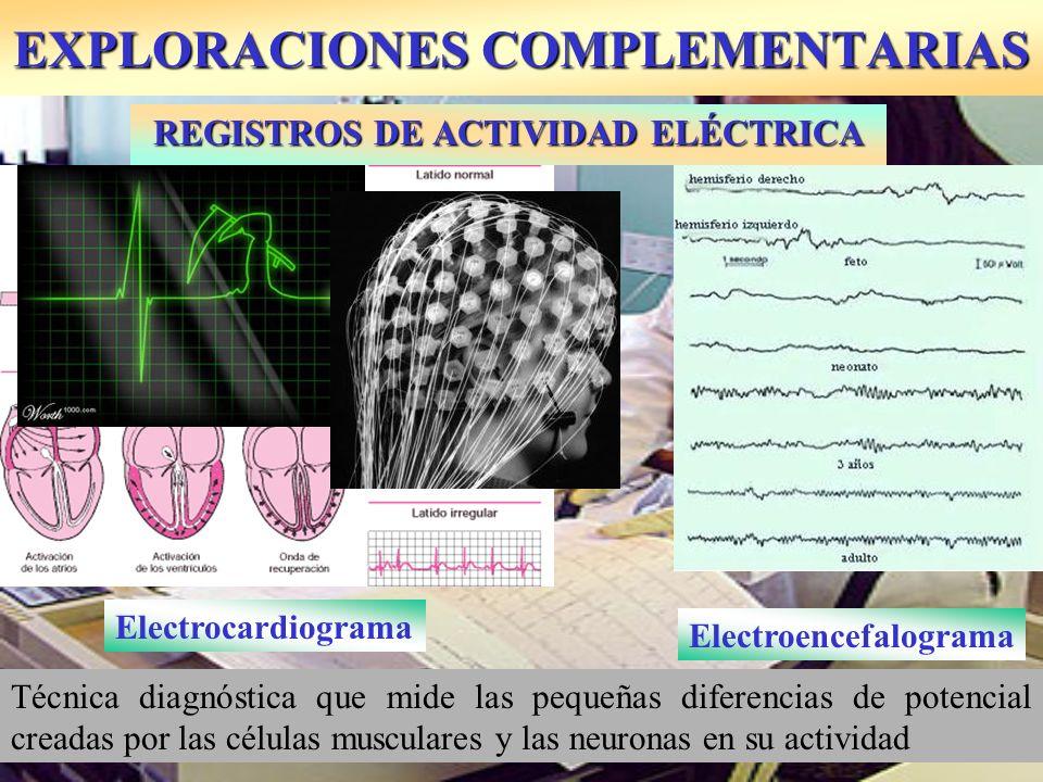 EXPLORACIONES COMPLEMENTARIAS Técnica diagnóstica que mide las pequeñas diferencias de potencial creadas por las células musculares y las neuronas en