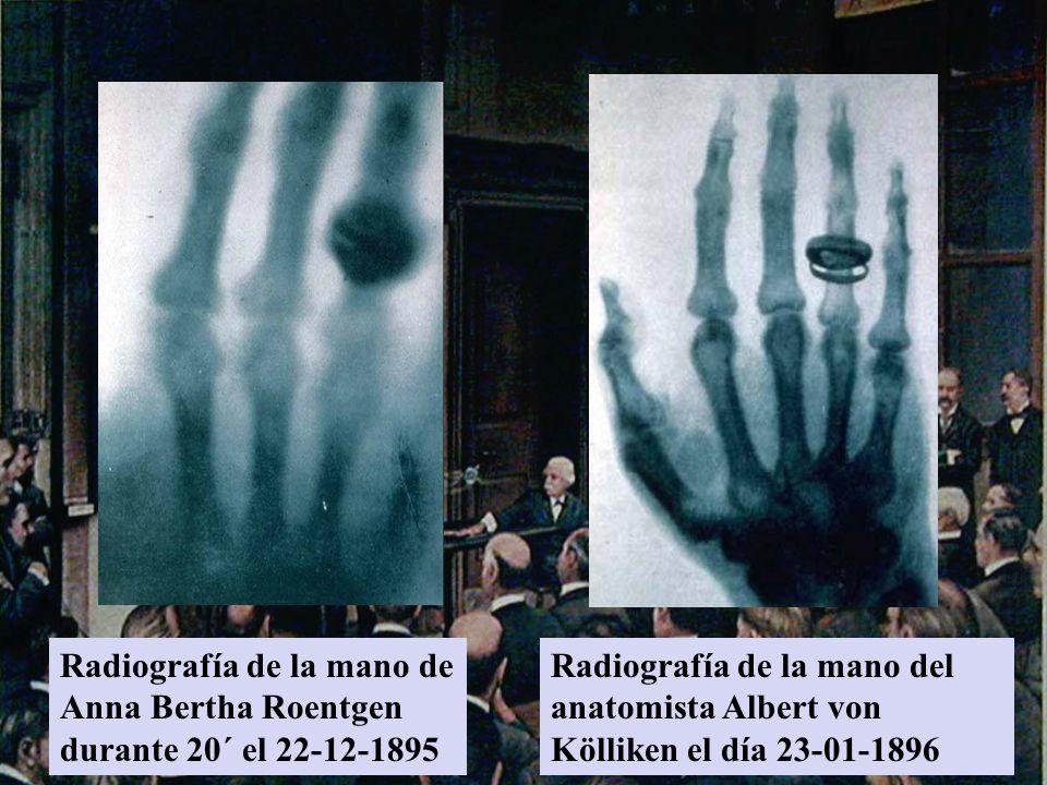 Radiografía de la mano de Anna Bertha Roentgen durante 20´ el 22-12-1895 Radiografía de la mano del anatomista Albert von Kölliken el día 23-01-1896