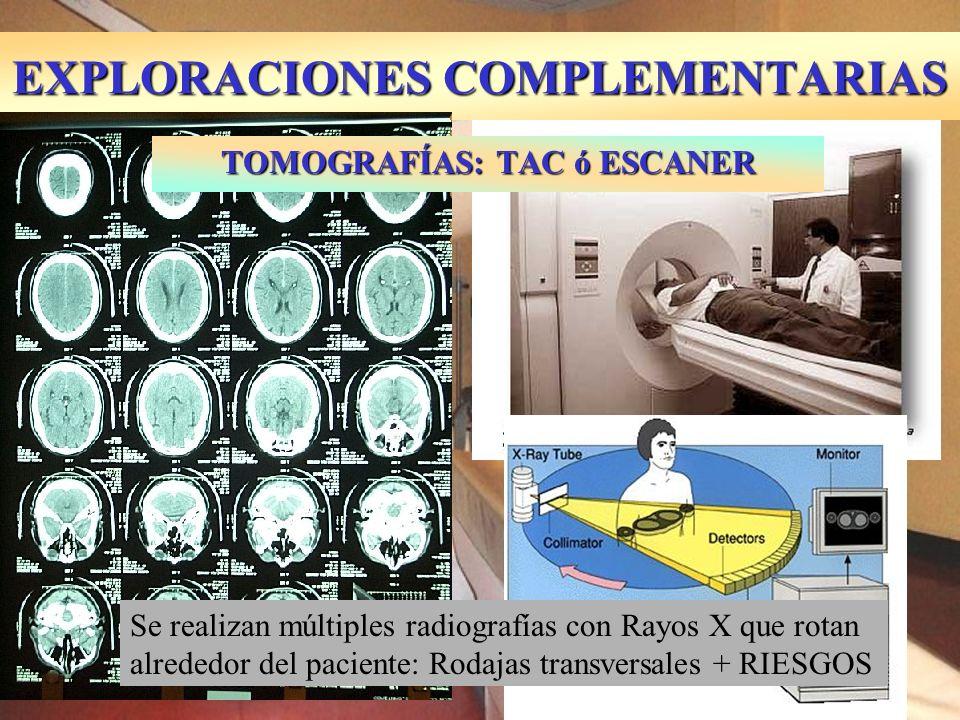 EXPLORACIONES COMPLEMENTARIAS TOMOGRAFÍAS: TAC ó ESCANER Se realizan múltiples radiografías con Rayos X que rotan alrededor del paciente: Rodajas tran