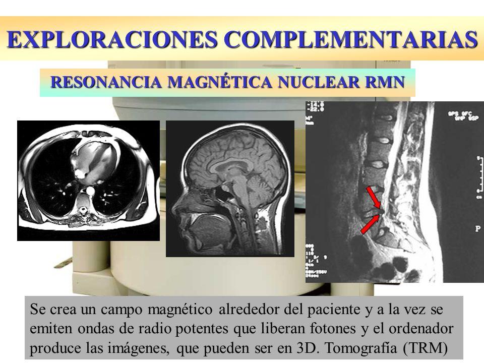 EXPLORACIONES COMPLEMENTARIAS RESONANCIA MAGNÉTICA NUCLEAR RMN Se crea un campo magnético alrededor del paciente y a la vez se emiten ondas de radio p