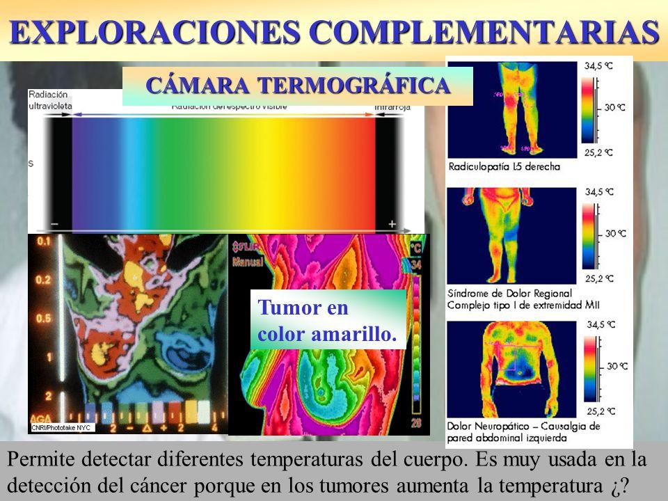EXPLORACIONES COMPLEMENTARIAS Permite detectar diferentes temperaturas del cuerpo. Es muy usada en la detección del cáncer porque en los tumores aumen
