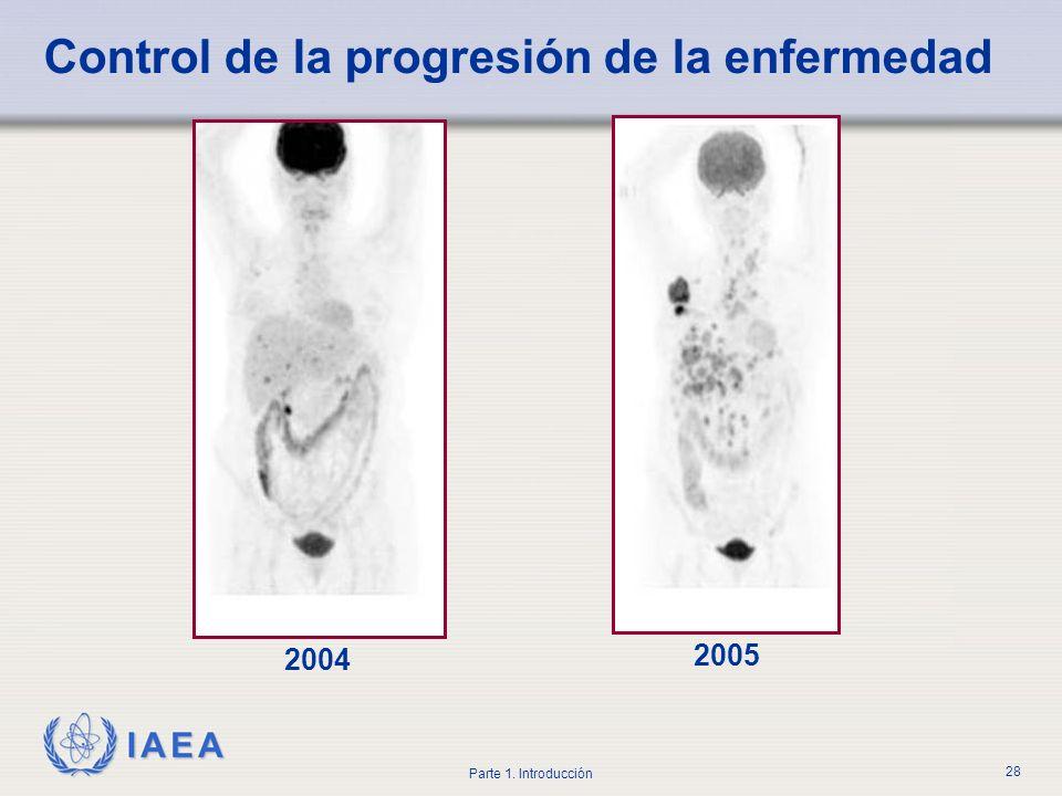 IAEA Parte 1. Introducción 28 Control de la progresión de la enfermedad 2004 2005