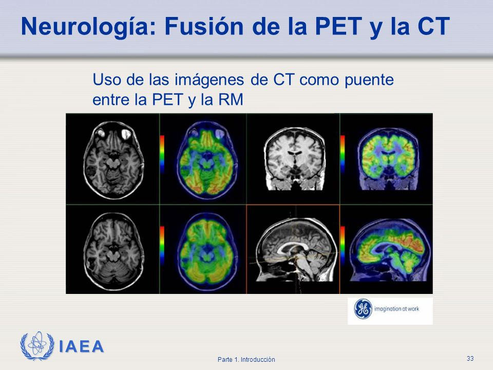 IAEA Parte 1. Introducción 33 Neurología: Fusión de la PET y la CT Uso de las imágenes de CT como puente entre la PET y la RM