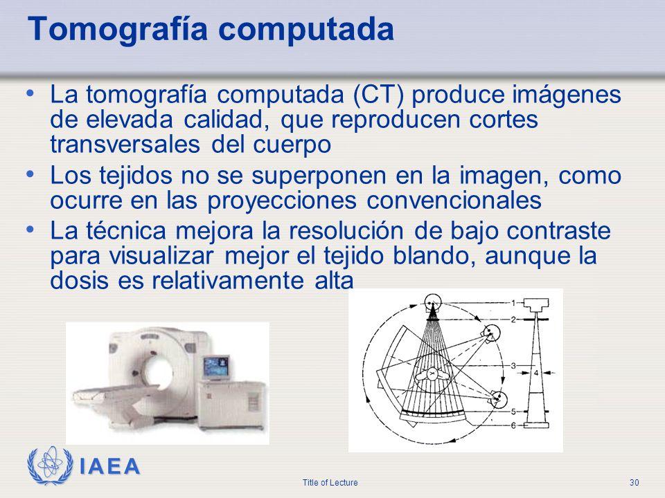 IAEA Title of Lecture30 Tomografía computada La tomografía computada (CT) produce imágenes de elevada calidad, que reproducen cortes transversales del