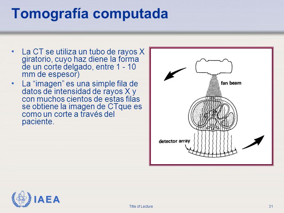 IAEA Title of Lecture31 Tomografía computada La CT se utiliza un tubo de rayos X giratorio, cuyo haz diene la forma de un corte delgado, entre 1 - 10
