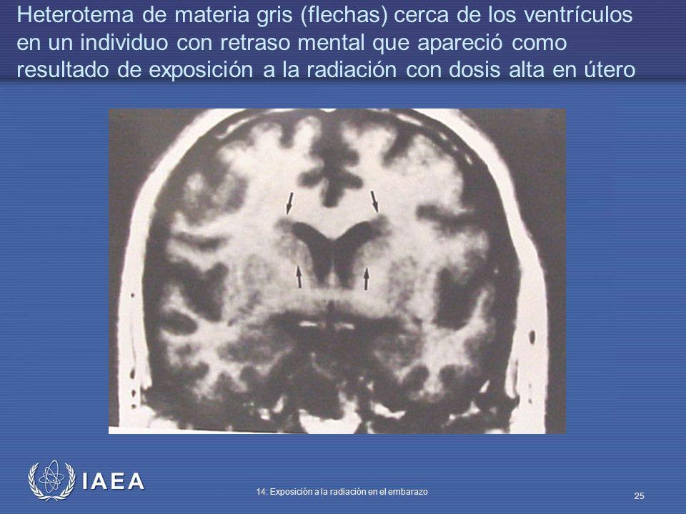 IAEA 14: Exposición a la radiación en el embarazo 25 Heterotema de materia gris (flechas) cerca de los ventrículos en un individuo con retraso mental