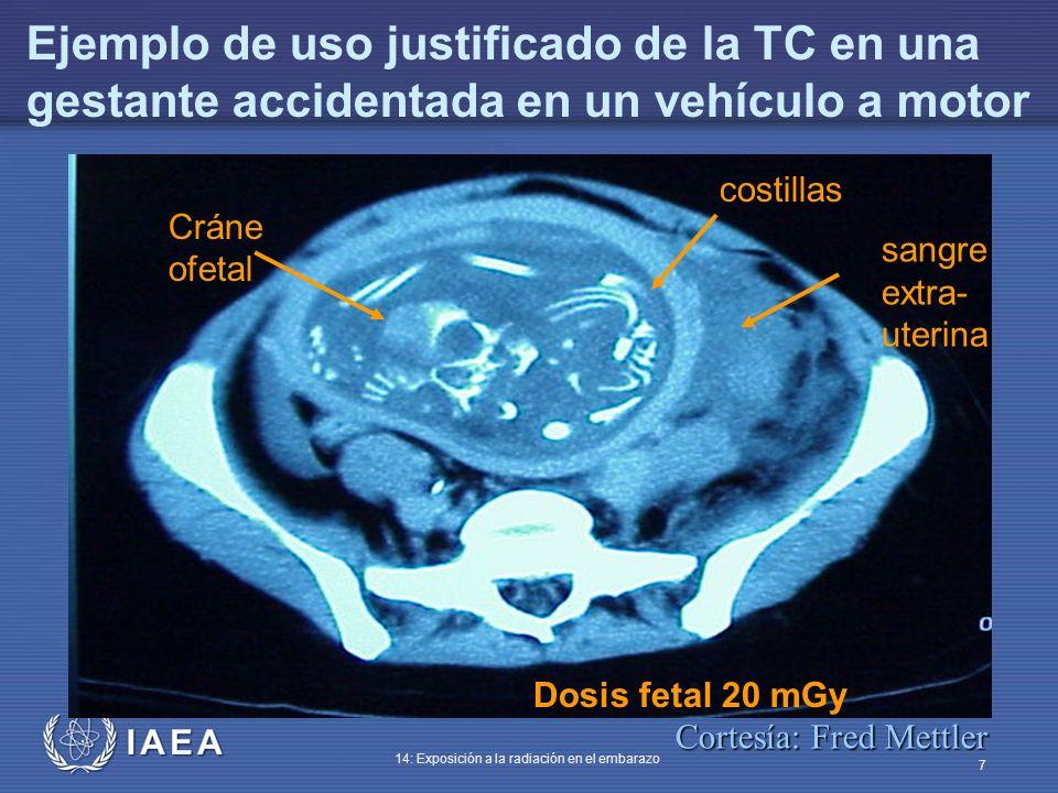 IAEA 14: Exposición a la radiación en el embarazo 7 Cráne ofetal costillas sangre extra- uterina Dosis fetal 20 mGy Ejemplo de uso justificado de la T