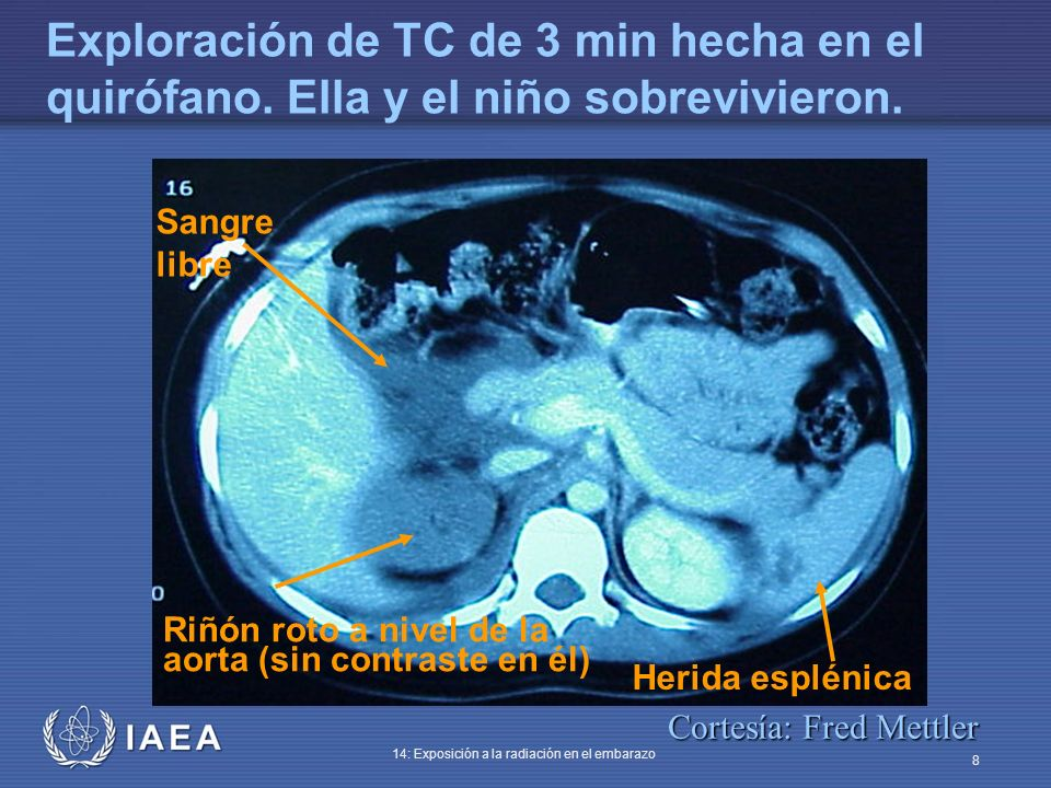 IAEA 14: Exposición a la radiación en el embarazo 8 Sangre libre Riñón roto a nivel de la aorta (sin contraste en él) Herida esplénica Exploración de