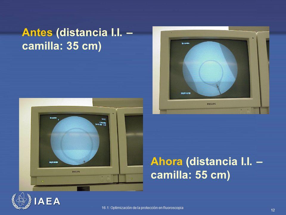 IAEA 16.1: Optimización de la protección en fluoroscopia 12 Antes (distancia I.I. – camilla: 35 cm) Ahora (distancia I.I. – camilla: 55 cm)