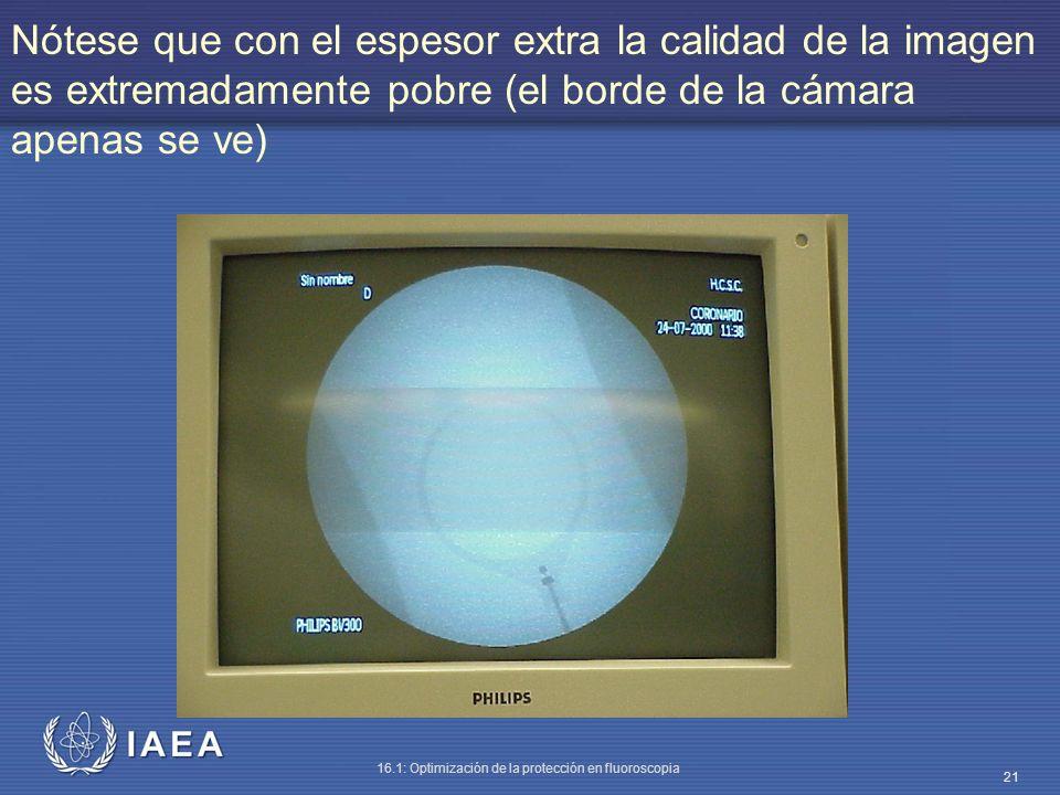 IAEA 16.1: Optimización de la protección en fluoroscopia 21 Nótese que con el espesor extra la calidad de la imagen es extremadamente pobre (el borde