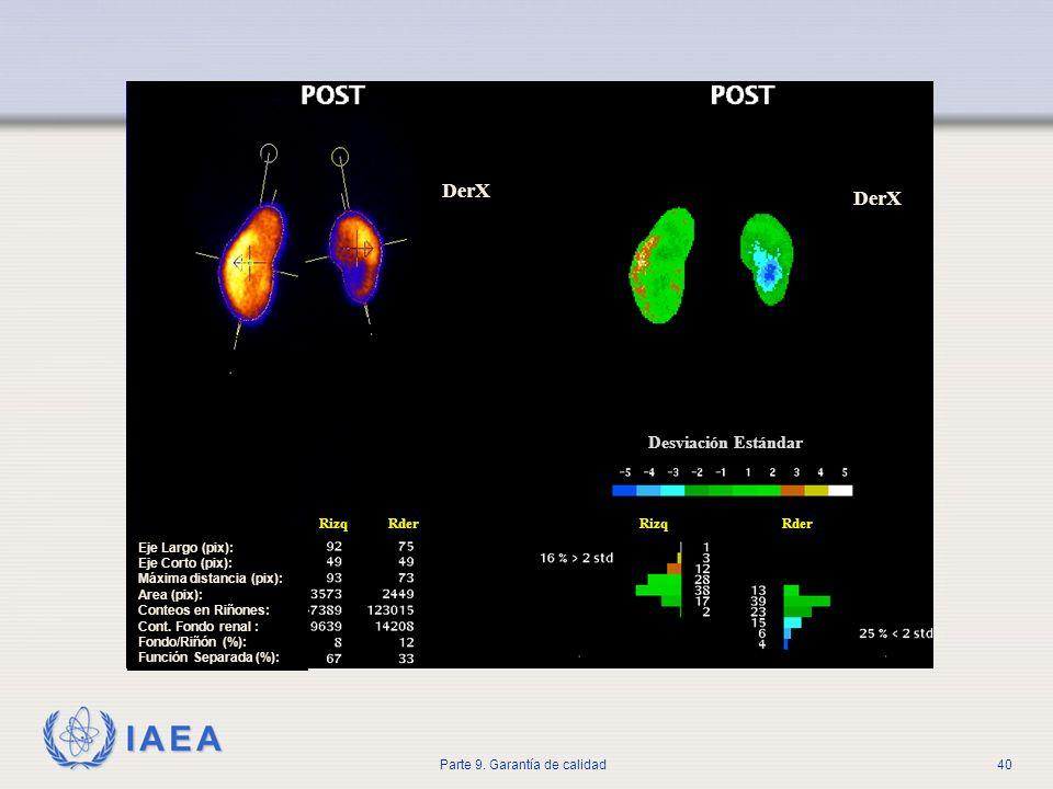 IAEA Parte 9. Garantía de calidad40 Eje Largo (pix): Eje Corto (pix): Máxima distancia (pix): Area (pix): Conteos en Riñones: Cont. Fondo renal : Fond
