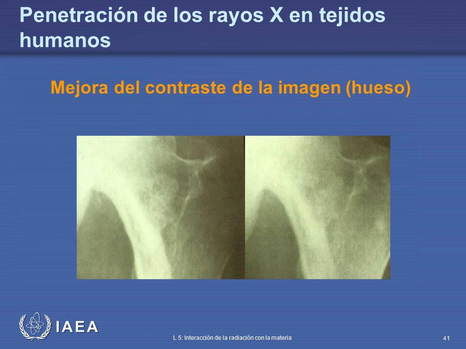IAEA L 5: Interacción de la radiación con la materia 41 Penetración de los rayos X en tejidos humanos Mejora del contraste de la imagen (hueso)
