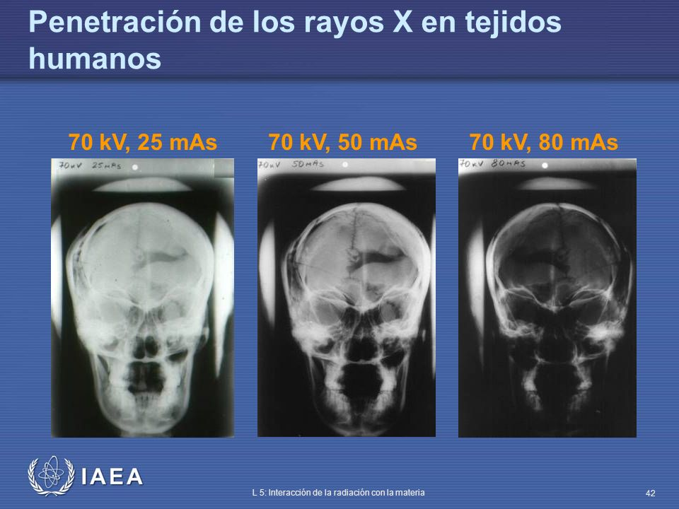 IAEA L 5: Interacción de la radiación con la materia 42 Penetración de los rayos X en tejidos humanos 70 kV, 25 mAs70 kV, 50 mAs70 kV, 80 mAs