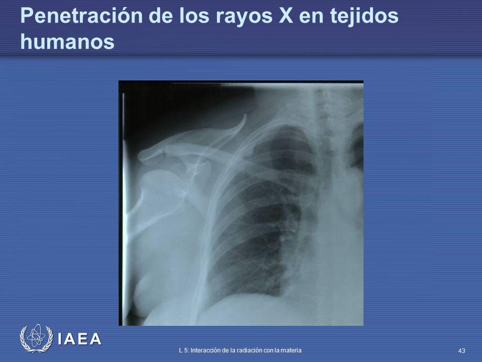 IAEA L 5: Interacción de la radiación con la materia 43 Penetración de los rayos X en tejidos humanos