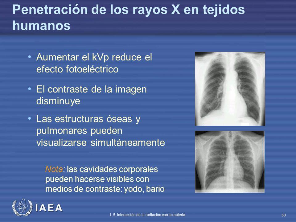 IAEA L 5: Interacción de la radiación con la materia 50 Penetración de los rayos X en tejidos humanos Aumentar el kVp reduce el efecto fotoeléctrico E