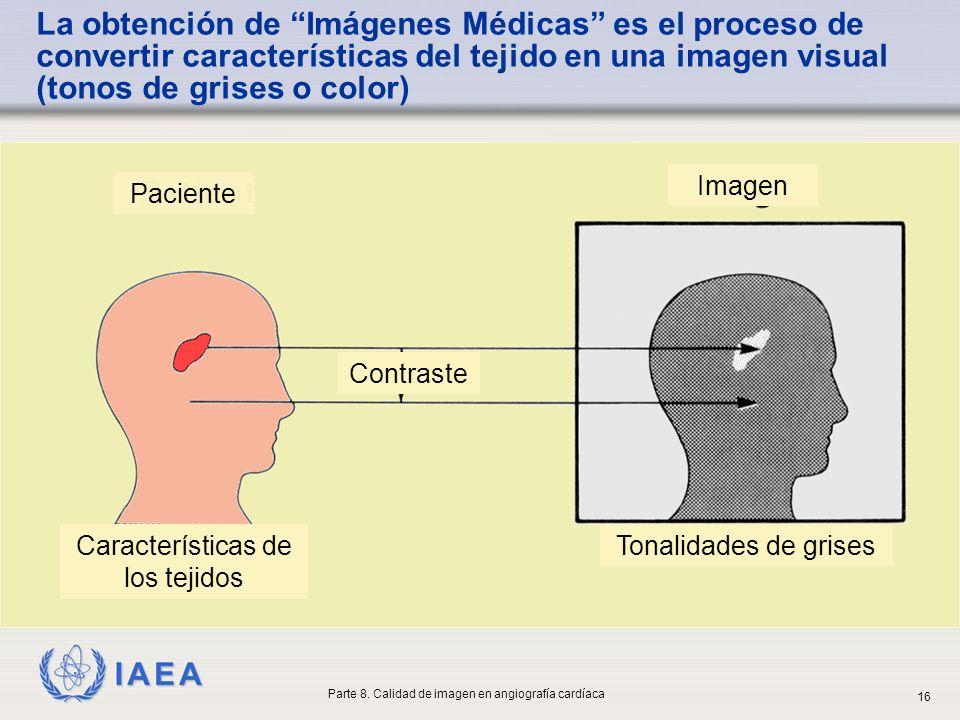 IAEA Paciente Contraste Imagen Características de los tejidos Tonalidades de grises La obtención de Imágenes Médicas es el proceso de convertir caract
