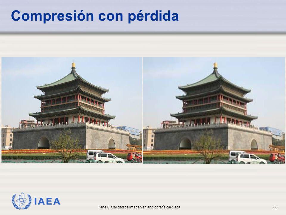 IAEA Compresión con pérdida Parte 8. Calidad de imagen en angiografía cardíaca 22