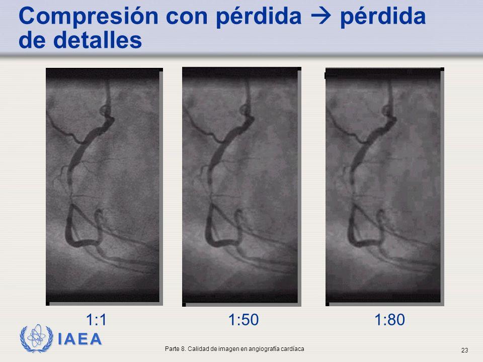 IAEA 1:801:501:1 Compresión con pérdida pérdida de detalles Parte 8. Calidad de imagen en angiografía cardíaca 23