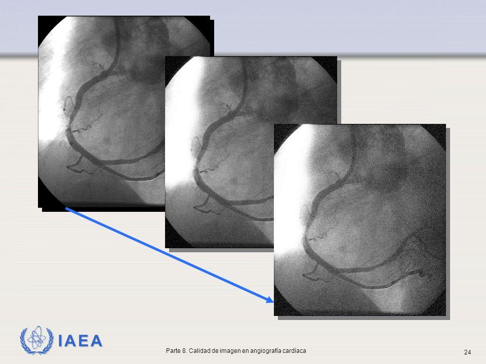 IAEA Parte 8. Calidad de imagen en angiografía cardíaca 24