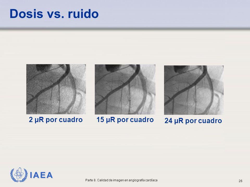 IAEA Dosis vs. ruido 2 µR por cuadro 15 µR por cuadro 24 µR por cuadro Parte 8. Calidad de imagen en angiografía cardíaca 26