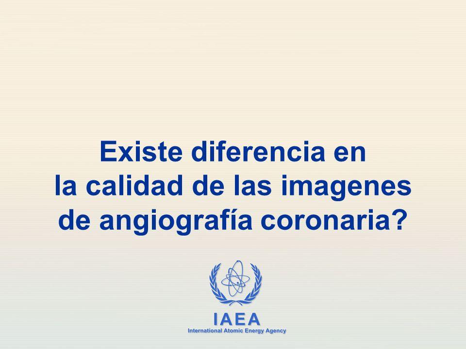IAEA International Atomic Energy Agency Existe diferencia en la calidad de las imagenes de angiografía coronaria?