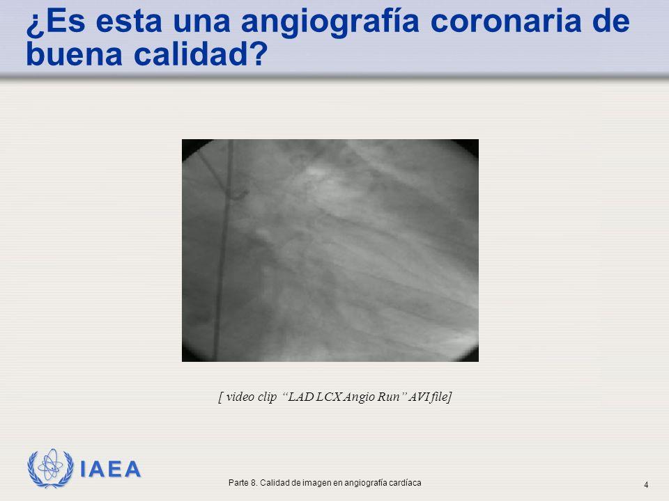 IAEA ¿Es esta una angiografía coronaria de buena calidad? [ video clip LAD LCX Angio Run AVI file] Parte 8. Calidad de imagen en angiografía cardíaca