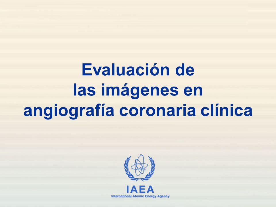 IAEA International Atomic Energy Agency Evaluación de las imágenes en angiografía coronaria clínica