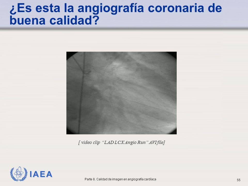 IAEA ¿Es esta la angiografía coronaria de buena calidad? [ video clip LAD LCX Angio Run AVI file] Parte 8. Calidad de imagen en angiografía cardíaca 5