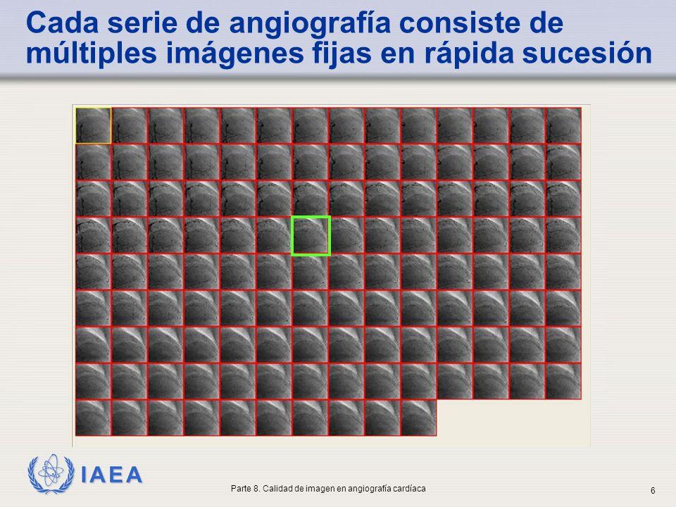 IAEA Cada serie de angiografía consiste de múltiples imágenes fijas en rápida sucesión Parte 8. Calidad de imagen en angiografía cardíaca 6