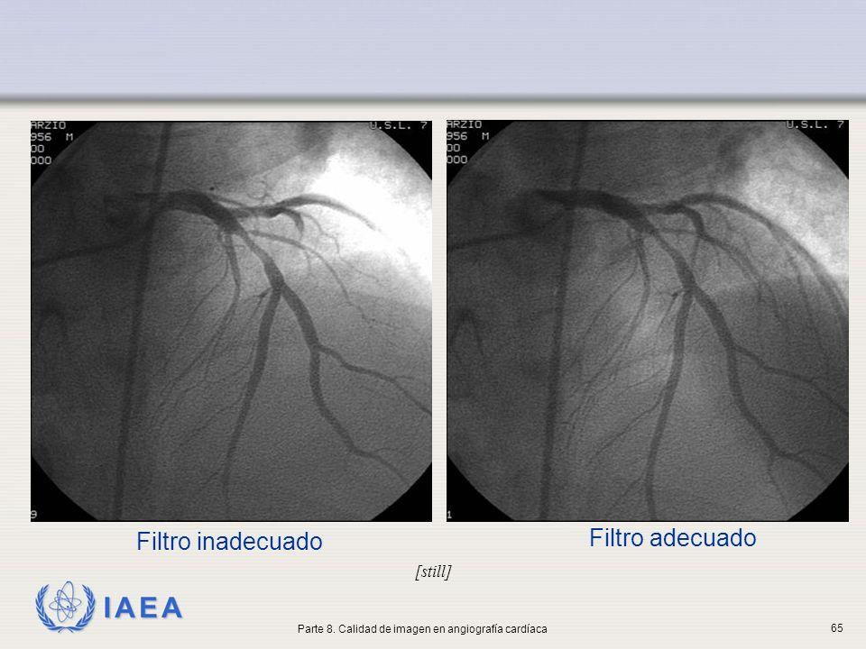 IAEA Filtro inadecuado [still] Filtro adecuado Parte 8. Calidad de imagen en angiografía cardíaca 65