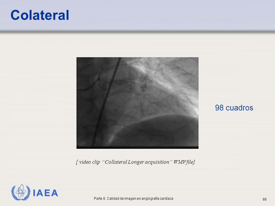 IAEA 98 cuadros [ video clip Collateral Longer acquisition WMV file] Colateral Parte 8. Calidad de imagen en angiografía cardíaca 66