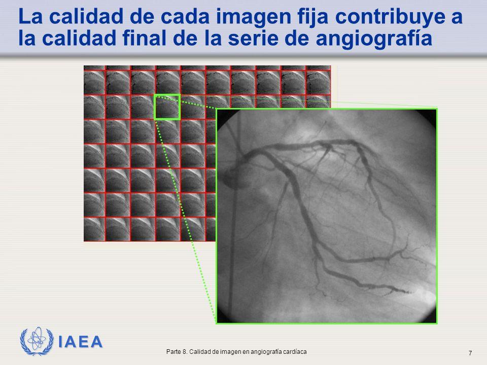 IAEA La calidad de cada imagen fija contribuye a la calidad final de la serie de angiografía Parte 8. Calidad de imagen en angiografía cardíaca 7