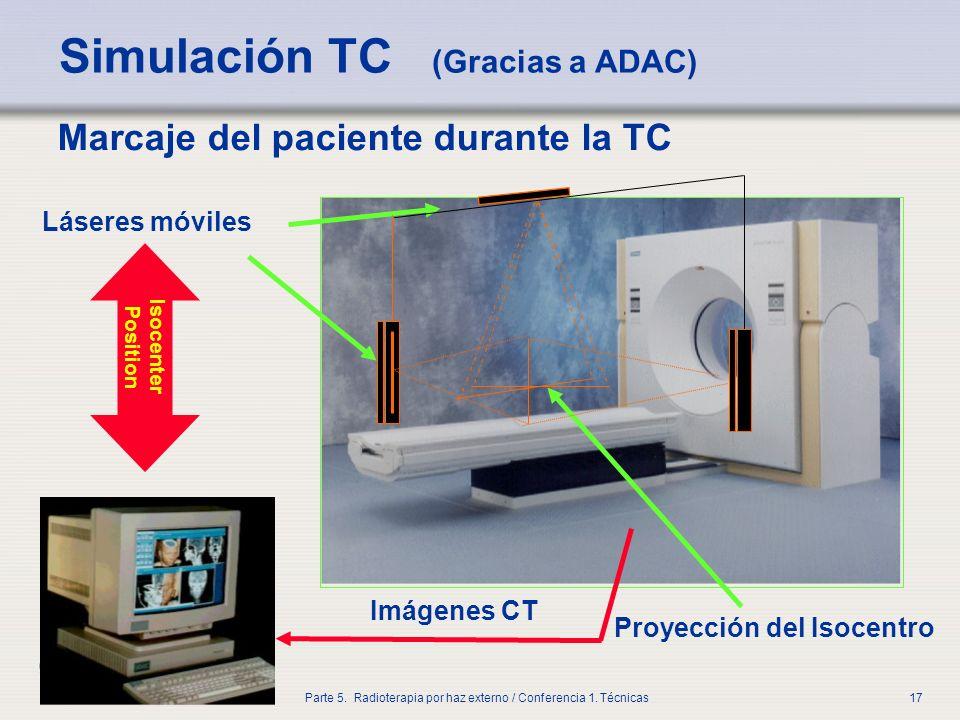IAEA Parte 5. Radioterapia por haz externo / Conferencia 1. Técnicas17 Simulación TC (Gracias a ADAC) Marcaje del paciente durante la TC Láseres móvil