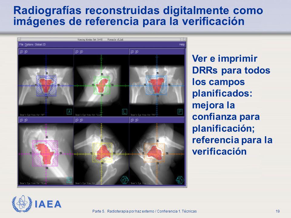 IAEA Parte 5. Radioterapia por haz externo / Conferencia 1. Técnicas19 Radiografías reconstruidas digitalmente como imágenes de referencia para la ver