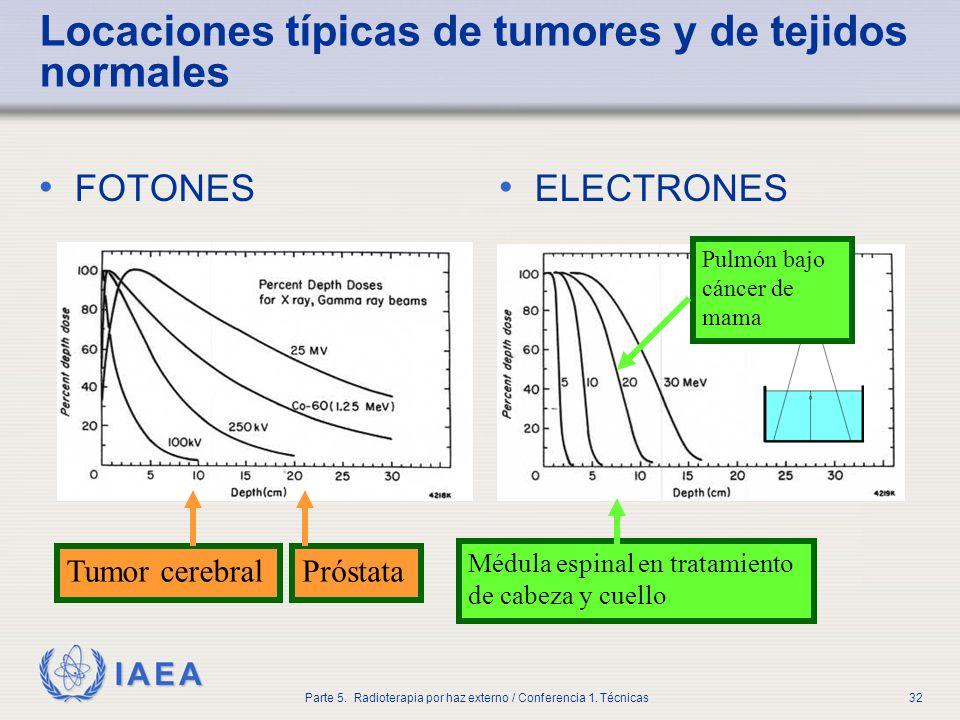 IAEA Parte 5. Radioterapia por haz externo / Conferencia 1. Técnicas32 Locaciones típicas de tumores y de tejidos normales FOTONES ELECTRONES Próstata
