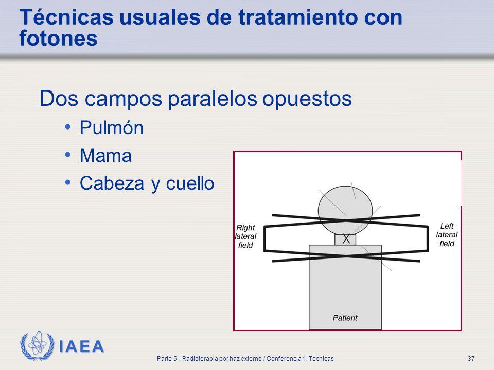 IAEA Parte 5. Radioterapia por haz externo / Conferencia 1. Técnicas37 Técnicas usuales de tratamiento con fotones Dos campos paralelos opuestos Pulmó