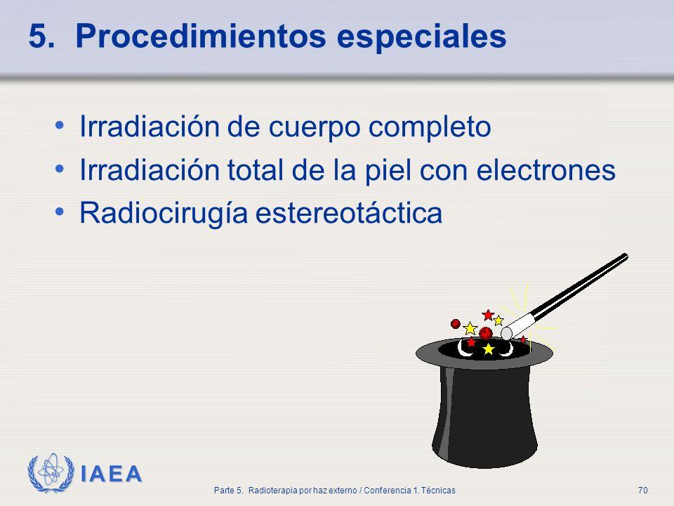 IAEA Parte 5. Radioterapia por haz externo / Conferencia 1. Técnicas70 5. Procedimientos especiales Irradiación de cuerpo completo Irradiación total d
