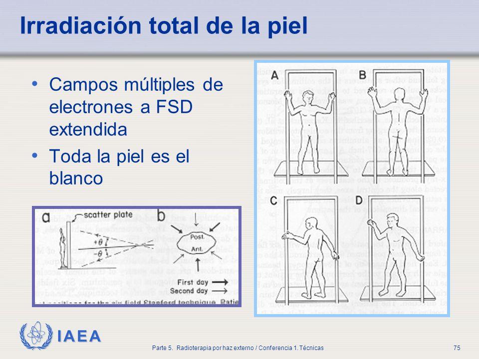 IAEA Parte 5. Radioterapia por haz externo / Conferencia 1. Técnicas75 Irradiación total de la piel Campos múltiples de electrones a FSD extendida Tod