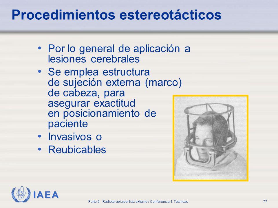 IAEA Parte 5. Radioterapia por haz externo / Conferencia 1. Técnicas77 Procedimientos estereotácticos Por lo general de aplicación a lesiones cerebral