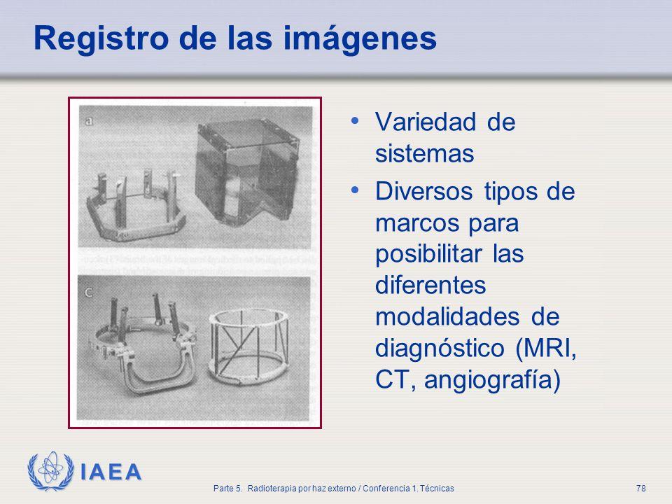 IAEA Parte 5. Radioterapia por haz externo / Conferencia 1. Técnicas78 Registro de las imágenes Variedad de sistemas Diversos tipos de marcos para pos