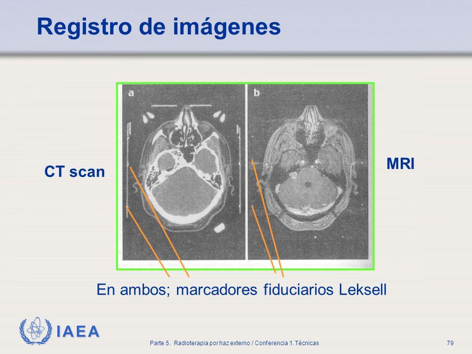 IAEA Parte 5. Radioterapia por haz externo / Conferencia 1. Técnicas79 Registro de imágenes CT scan MRI En ambos; marcadores fiduciarios Leksell