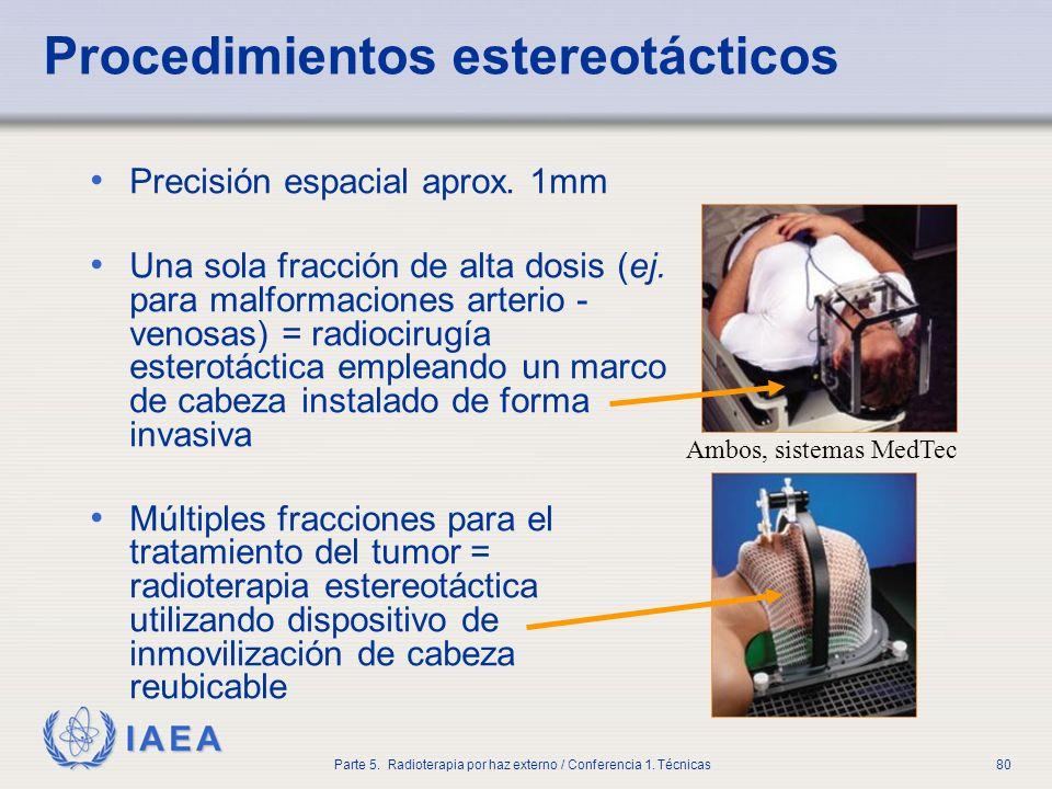 IAEA Parte 5. Radioterapia por haz externo / Conferencia 1. Técnicas80 Procedimientos estereotácticos Precisión espacial aprox. 1mm Una sola fracción