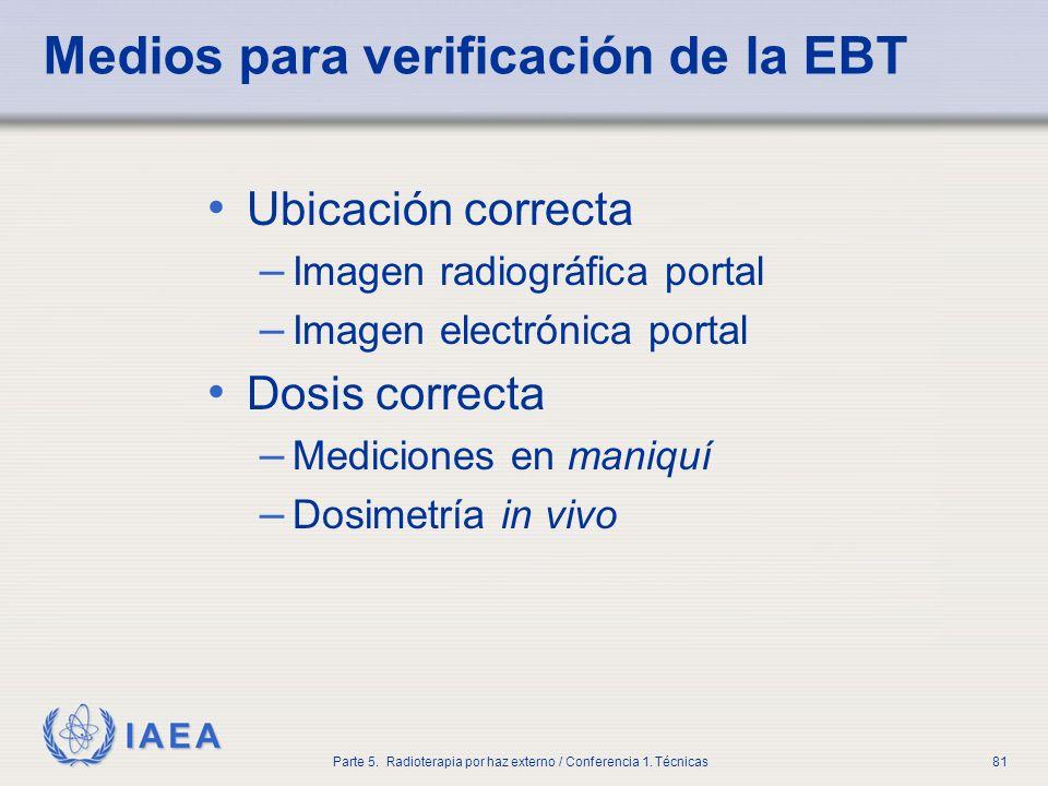 IAEA Parte 5. Radioterapia por haz externo / Conferencia 1. Técnicas81 Medios para verificación de la EBT Ubicación correcta – Imagen radiográfica por