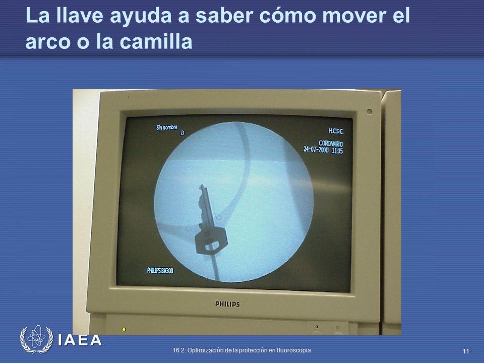 IAEA 16.2: Optimización de la protección en fluoroscopia 11 La llave ayuda a saber cómo mover el arco o la camilla